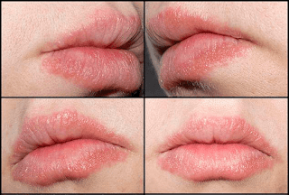 Gara-gara Alergi Lipstik