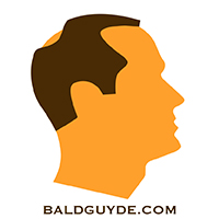 Male Pattern Baldness Stage 3 Hair Loss