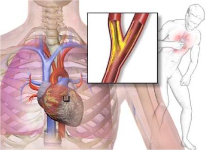gejala angina pectoris serta cara menghapuskannya