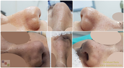 Bayan Burun Estetiği  Burun Estetiği Bayanda - Bayanlarda Burun Estetiği - Bayan Burun Estetiği İstanbul - Eğri Burun Ameliyatı - C Burun Estetiği - Asimetrik Burun Estetiği - Female Nose Aesthetic Surgery - Nose Jobs For Women - Nose Reshaping for Women - Female Rhinoplasty Istanbul - Nose Job Surgery for Women - Women's Rhinoplasty - Nose Aesthetic Surgery For Women - Female Rhinoplasty Surgery in Istanbul - Female Rhinoplasty Surgery in Turkey - C Burun - Crooked Nose - Deviated Nose - Twisted Nose - Deflected Nose - Asymmetric Nose - Scoliotic Nose - Rhinoplasty in Istanbul - Rhinoplasty Istanbul - Rhinoplasty in Turkey - Rhinoplasty Turkey - Nose Job Istanbul - Nose Job Turkey