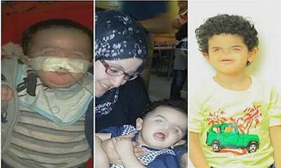 طفل يولد بدون انف, التنمر, كائن فضائى, والدة محمد,
