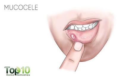 วิธีรักษาตุ่มที่ริมฝีปาก