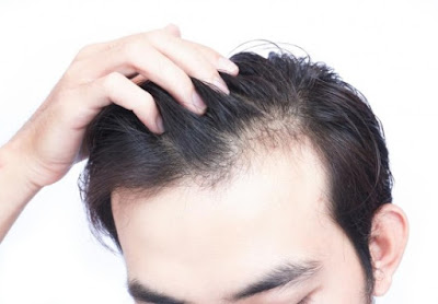 Health tips and home remedies for hair loss