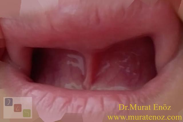 Alveoler hipoplaziye neden olan üst dudak bağı - Üst dudak bağına bağlı üst çene kemiğinde yapısal etkilenme - Üst dudak bağının zararları