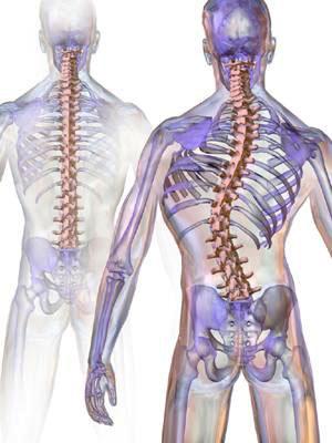 perbezaan tulang belakang normal dan scoliosis