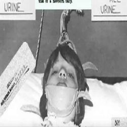 Tratamento de choque: A conturbada história da terapia eletroconvulsiva