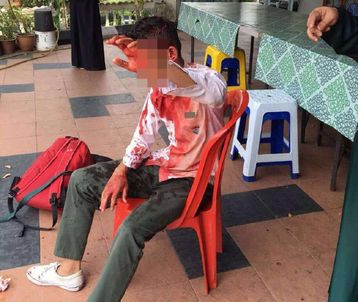 2 Pelajar Cedera Parah Di Belasah 15 Pelajar Sekolah Lain