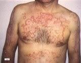 Obat Tradisional Penyakit Lupus Terbaik