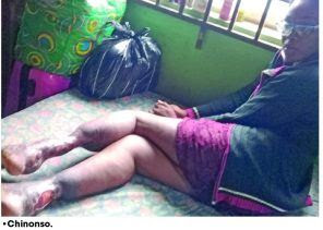 Heartbreaking Photo Of Beautiful Lady Whose Legs Were Badly Damaged In A Fatal Accident