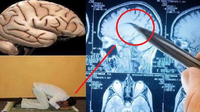 Subhanallah! Ternyata Otak Manusia Menyerupai Orang Sujud ! Kamu Akan Lebih Rajin Sholat Setelah Tahu Fakta Ini !!