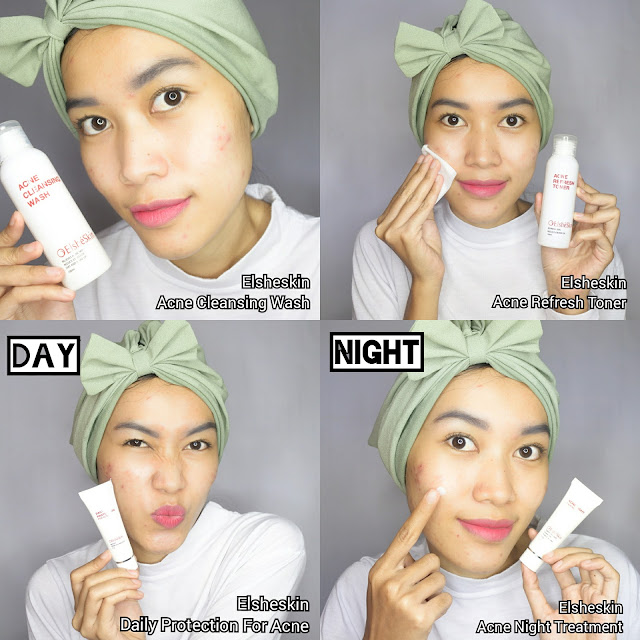 Review Elshekin Acne Care Series