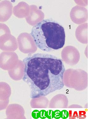 Virus infection can also lead to elevated counts of large granulated lymphocytes (LGL) (1). Monocyte (2).