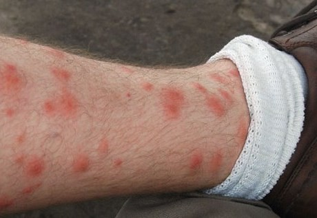 skin rashes on legs medicine