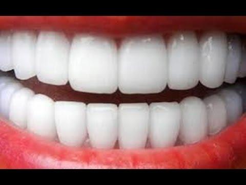طريقة مذهلة لتبييض الأسنان بدون مواد كيماوية أو مصاريف