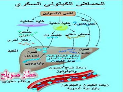 98e7e707d علاج السكري بالاعشاب -خبير الاعشاب والتغذية العلاجية