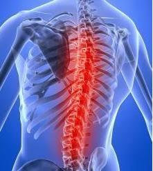 Cara Mengobati Sakit Tulang Belakang yang Ampuh