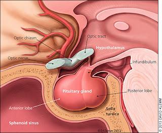 sindrom tumoral hipofizar
