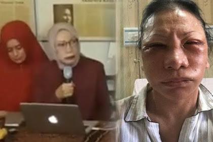 Tulisan Naniek S Deyang: Bu Ratna Menelpon Saya Sambil Menangis, Tak Bisa Bicara Kebenaran Di Negeri Demokerasi Yang Lagi Sakit