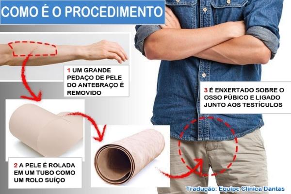 Reconstrução Genital (Faloplastia)