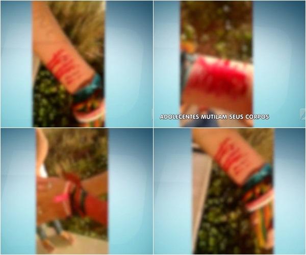 Adolescentes se mutilam com giletes em Batalha