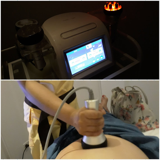 LIPO CAVITATION (tummy)