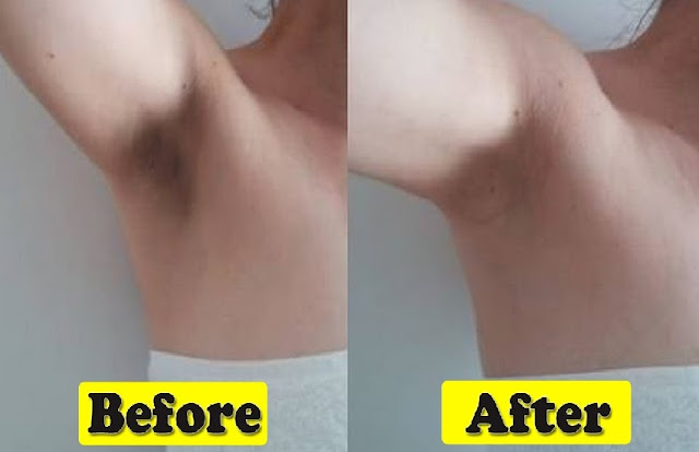 Effective ways to whiten underarms naturally