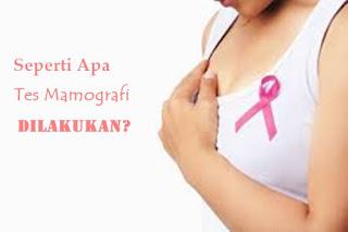mamografi, kanker, payudara