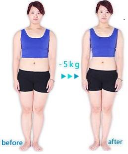 不復胖, 台北有效減肥, 有效減肥, 美麗好診所, 專業減重, 減肥, 減肥名醫, 減肥門診, 減肥推薦, 減肥診所, 減肥藥, 減重門診, 減重推薦, 瘦身推薦,減肥診所推薦