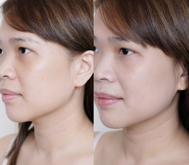 before and after photo of Esfolio Snow Whitening Cream Review by Nikki Tiu of www.askmewhats.com