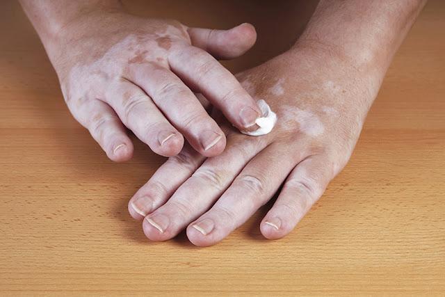 وصفات طبيعية لعلاج مرض البهاق