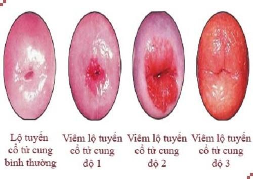 Những nguy hiểm không thể lường tới của bệnh viêm tử cung-https://phuongphapphathainoikhoa