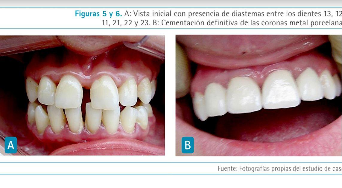 rehabilitacion-oral