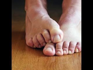 Como puedes eliminar la olor de pies de manera natural