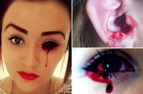 17 year old girl who bleeds from her eyes, ears and mouth reveals the misery of the horriying condition