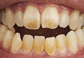 Најбољи производ за избјељивање зуба