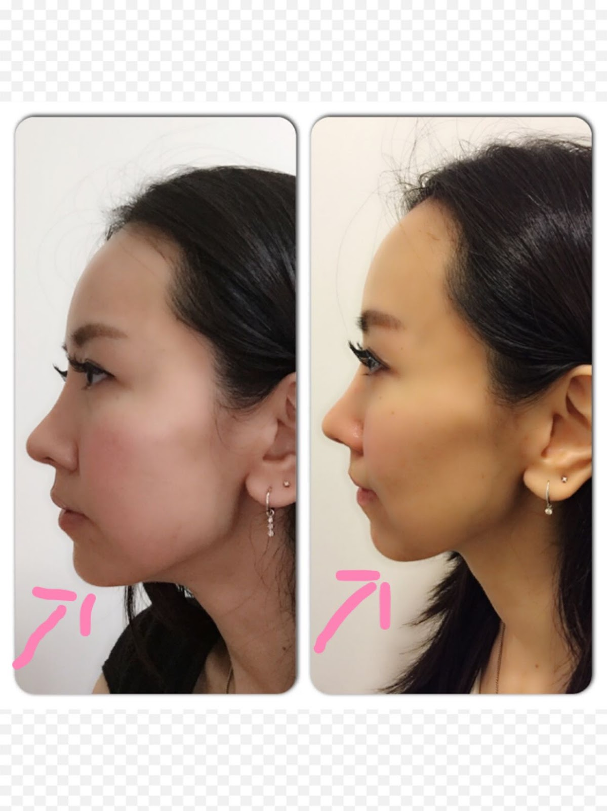 Juvederm Fillers at The Clifford Clinic by Dr Gerard Ee