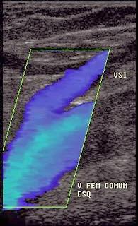 O diâmetro e o refluxo da veia safena são medidos atraves do ultrassom doppler venoso (duplex)