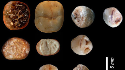Prehistoric teeth reveal how our ancestors ate 400,000 years ago