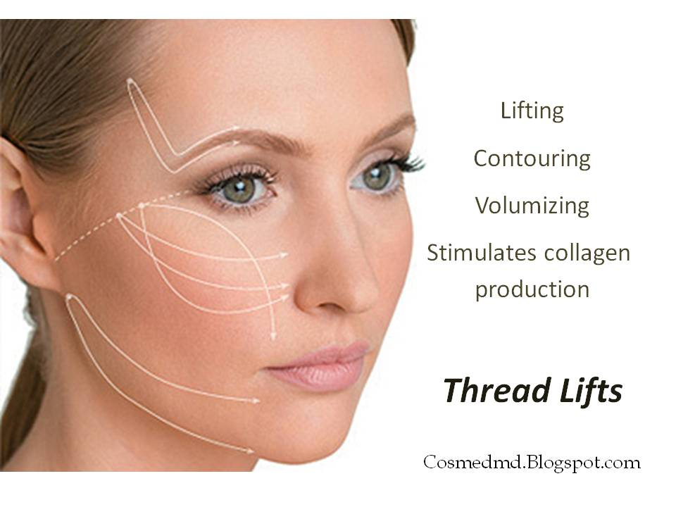 Facial Thread Lift 13
