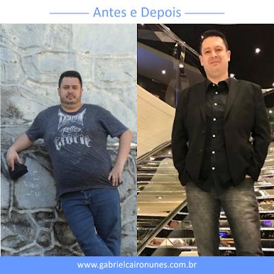 foto do antes e depois da cirurgia bariatrica de Eugenio Montes