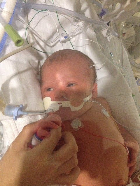 Picture of baby Elijah in the NICU