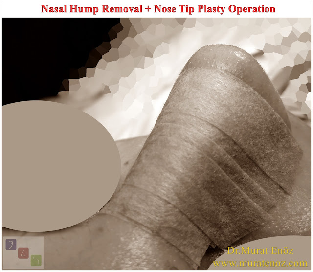 Nasal Hump Removal - Nasal Hump Reduction - Nasal Hump Removal Procedure Can Be Done Without Breaking The Nasal Bone! - In The Healing Time After The Nasal Hump Removal, It May Protrude Partially Over The Nose! - Nasal Hump Removal Alone is Not Suitable For Each Patient! -  Nasal Hump Removed Excessively Your Nose May Look Larger and Wider Than Before From The Front View - Nasal Hump Removal In Patients With Twisted Nose and Curved Nose Deformity - The Upper Part of The Nose Bone is Usually Removed During The Procedure of Nasal Hump Reduction - The Result After Healing From Nasal Hump Removal and Pre-operative Computer Nose Aesthetics Animation Can Be Different! - The Nose Filler Procedure Does Not Remove The Nose Belt! - The Nose Filler Procedure Does Not Remove The Nose Belt! - How Long is The Recovery Time After The Nose Belt Surgery and Nose Aesthetic Surgery? - Recovery Process of Nasal Rasping - Nasal Rasping Age Limit - Nasal Hump Removal - Nasal Hump Reduction in Istanbul - Nasal Hump Removal in Istanbul - Nasal Hump Removal in Turkey - Nasal Hump Rasping in Istanbul - Dorsal Hump Removal in Istanbul - Nasal Hump Rhinoplasty in Istanbul - Nasal Hump Reduction in Istanbul - Rhinoplasty Without Bone Breaking in Istanbul - Nose job Without Breaking Bone - Removal of The Nasal Hump in Istanbul - Nasal Aesthetic Surgery Without Breaking The Bone in Istanbul - Rhinoplasty Without Breaking Nose Bone in Turkey - Rhinoplasty in Istanbul