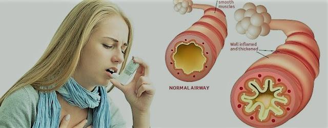 Cara mudah mengobati Penyakit Asma Secara Alami