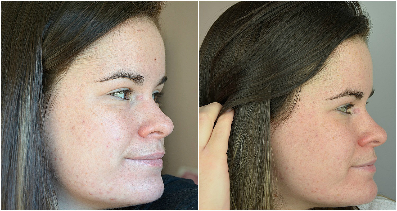 bilan du quatrième mois de traitement contre l'acné comparatif joue droite