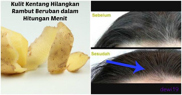 Jangan Buang Kulit Kentang !! Karena Bisa Hilangkan Rambut Beruban Dalam Sekejap, Begini Caranya !!