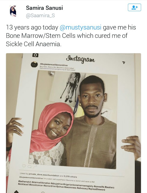 Be a hero! Nigerian Sickle Cell survivor celebrates her brother who donated his own bone marrow to her 13 years ago