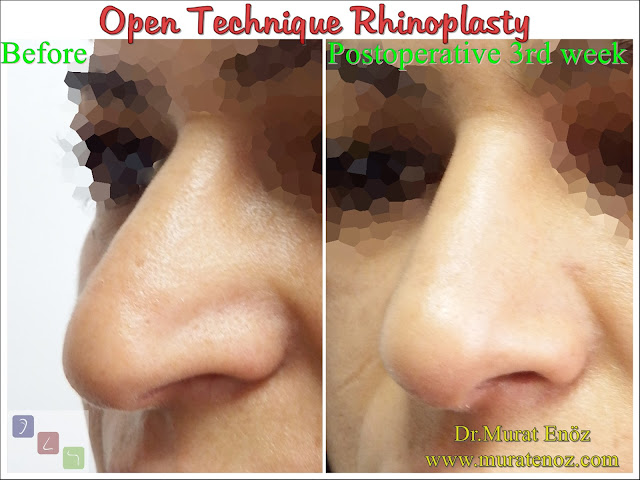 Open technique rhinoplasty - Open rhinoplasty - Rhinoplasty in women - Rhinoplasty in Istanbul - Rhinoplasty in Turkey