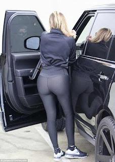 Khloe Kardashian butt reduction rumors