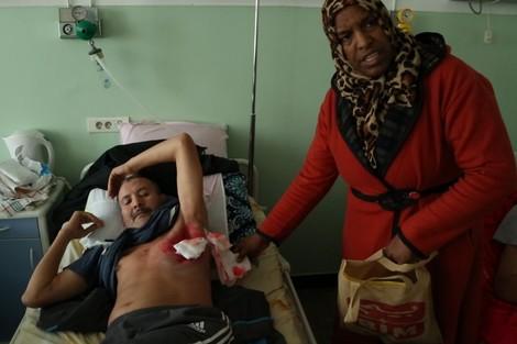 """الجهوية 24 - السل والفقر يحولان جسد """"فرناتشي"""" إلى جثة متعفنة مع وقف التنفيذ"""