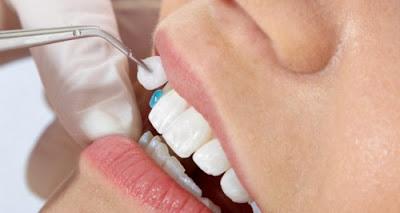 ở đâu bọc răng sứ trả góp -8